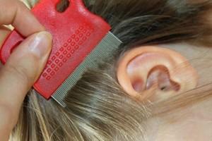 Der Artikel nennt Wissenswertes bezüglich Kopfläuse.
