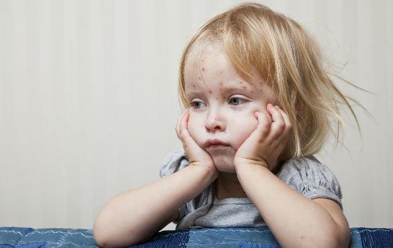 Kinderkrankheit Masern – impfen ist wichtig