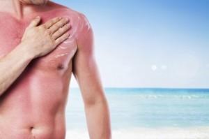Mann mit starkem Sonnenbrand am Strand