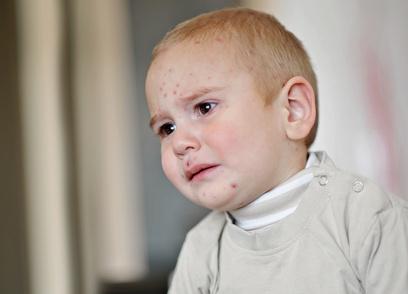Neurodermitis: große Belastung für die Kleinen