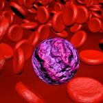 Leukämie: Erkrankungsrisiko minimieren