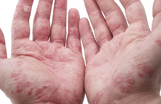Psoriasis: Was tun, wenn Schuppenflechte im Alter auftritt?