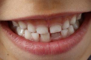 Zahnfehlstellung schon im Kindesalter beheben